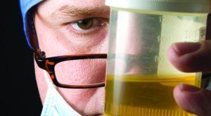 Как правильно собрать суточную мочу на анализ белка