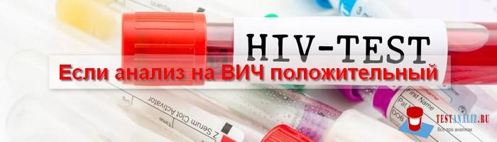 анализ на ВИЧ положительный