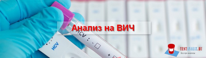 Photo of Анализ на ВИЧ – сколько стоит и где можно сдать