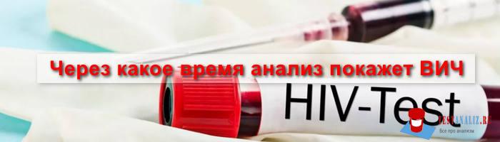 Через какое время после заражения ВИЧ покажет анализ крови