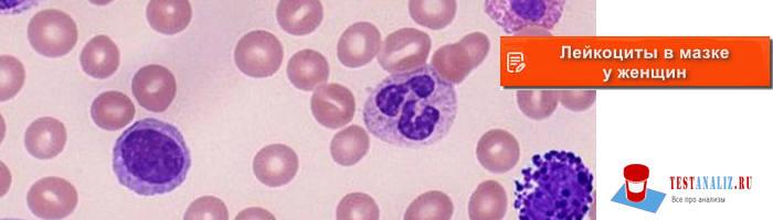 Лейкоциты в мазке у женщин