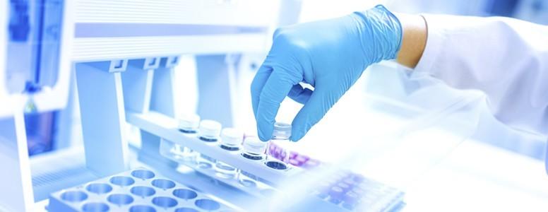 Photo of Для чего сдают биохимический анализ крови, что он может показать