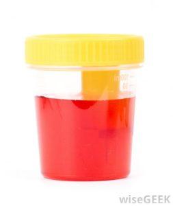 Увеличены эритроциты в моче