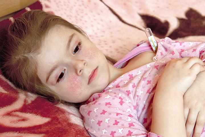 Photo of Симптомы хламидиоза у детей, его виды, диагностика и лечение