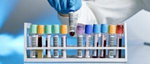 Насколько достоверными являются анализы на ВИЧ