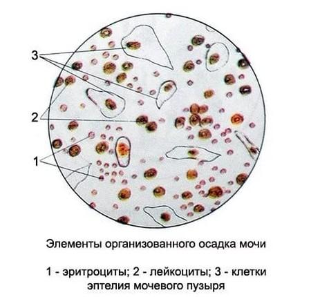 Photo of Какой должна быть норма лейкоцитов и эритроцитов в моче
