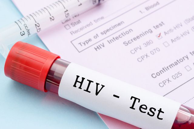 Photo of Причины ложного результата на ВИЧ