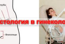 Photo of Что может определить гистология в гинекологии