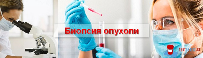 биопсия опухоли
