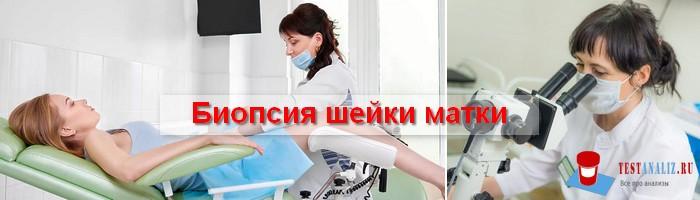 Photo of Для чего и как проводится биопсия шейки матки
