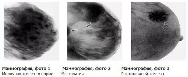маммография - результаты