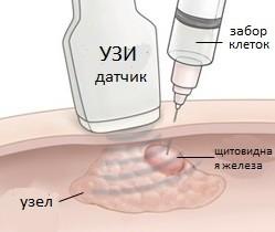тонкоигольная биопсия щитовидной железы