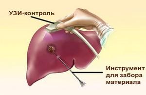 биопсия печени - как делать