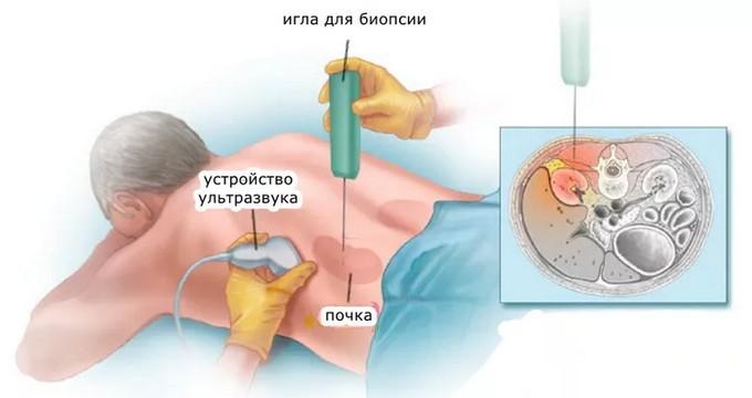 биопсия почки - что это