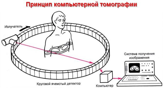 как работает томограф