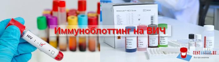 иммуноблоттинг на ВИЧ