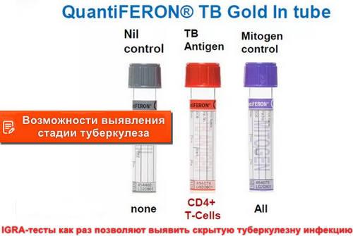 Возможности выявления стадии туберкулеза