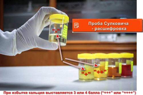 Проба Сулковича - расшифровка
